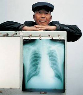 Man having standing behind an x-ray picture